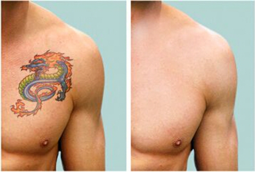 removal of tatoo